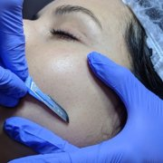 Dermaplaning from Julie Gamble in Kent
