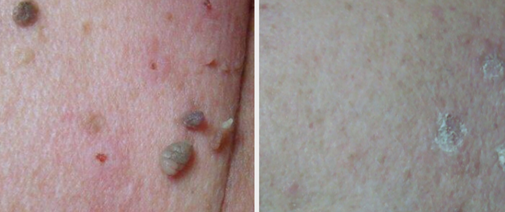 Skin Tag Removal in Kent