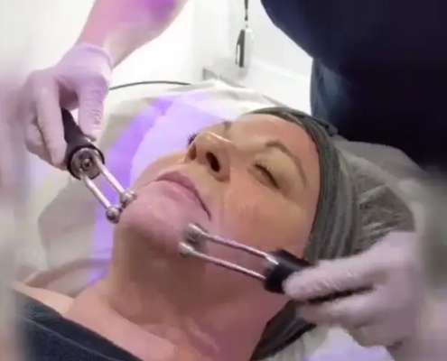 HydraDerm Facial from Julie Gamble in Kent